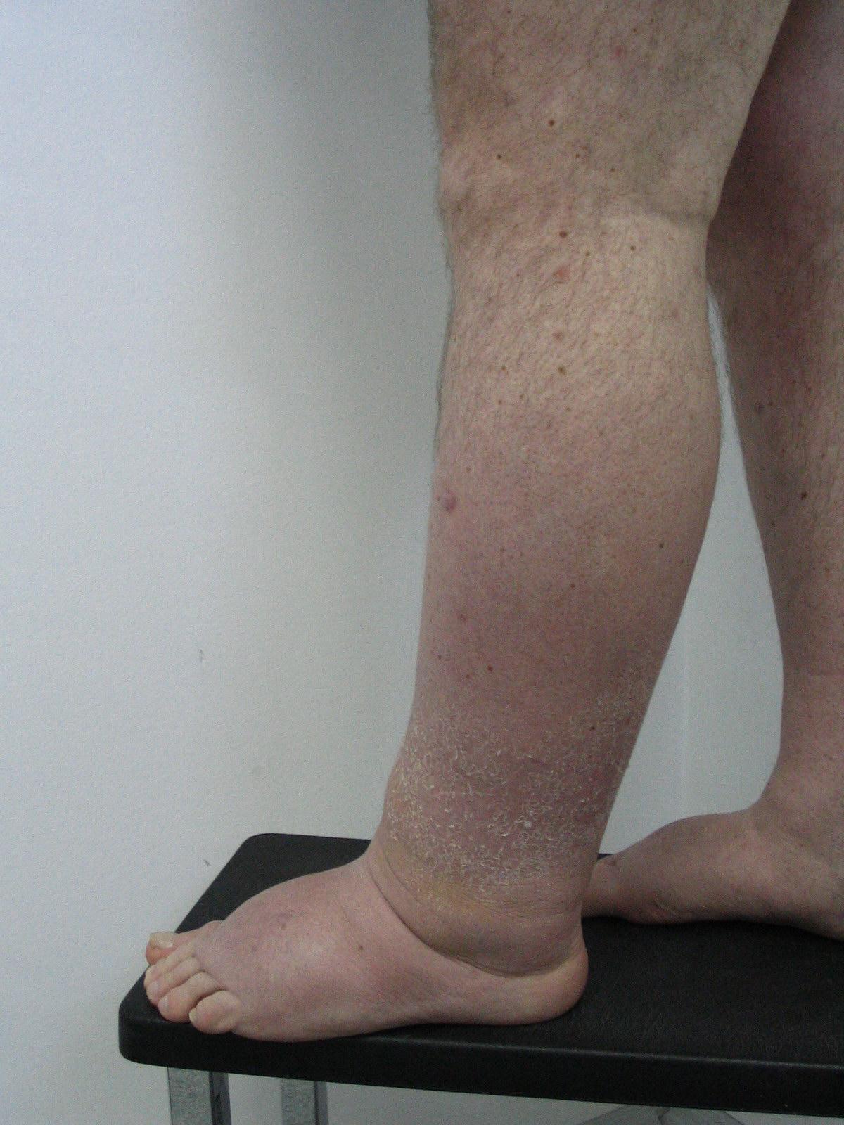 inflamația ganglionului limfatic al articulației gleznei pastile pentru tratamentul artrozei don